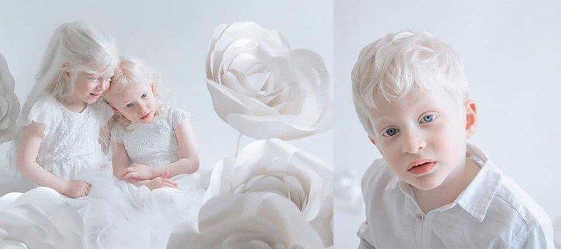 albinismo e a protecao solar banner